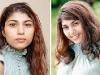 hair volumizer system hair loss